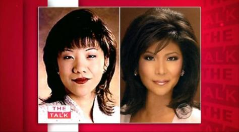 Photos of Julie Chen before and after her Asian Blepharoplasty (also known as Double Eyelid Surgery).